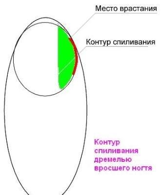Аир грибок ногтей