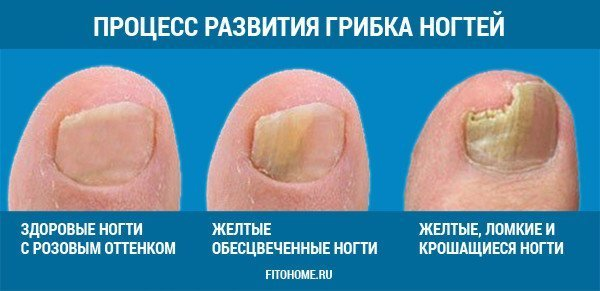 Медицинские средства от грибка ног