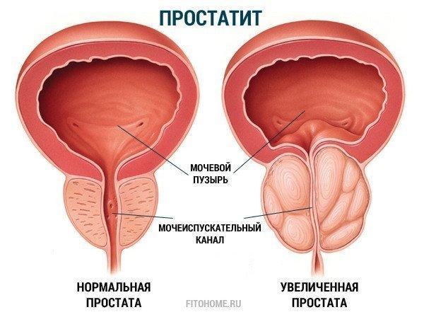 простатит и лечение фото