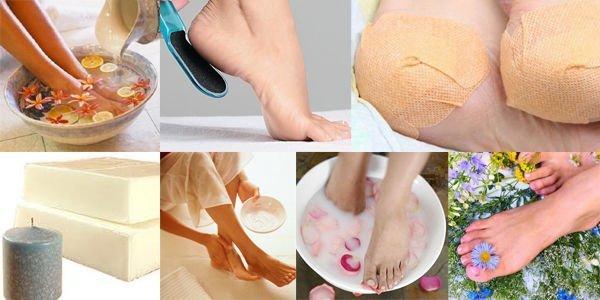 методы лечение трещин на пятках