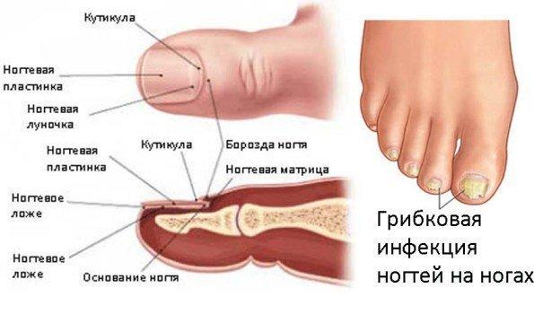 Ногтевой грибок лечение белизной