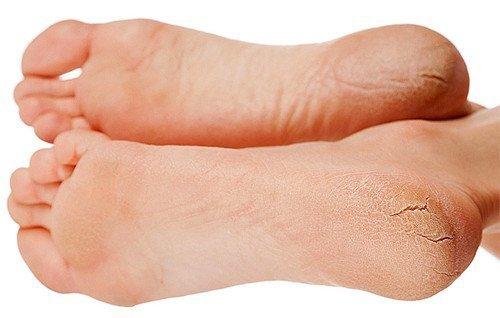 luchshee-sredstvo-ot-gribka-na-nogah-otzivi