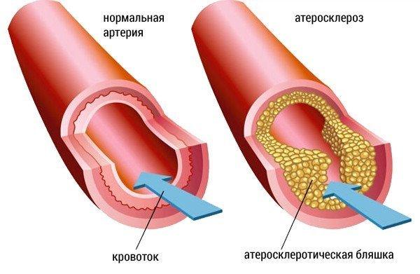 высокий холестерин принимать