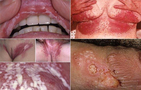 признаки молочницы у женщин фото и лечение