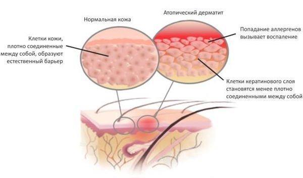 атопический детский дерматит