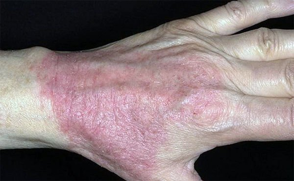Лечение псориаза в екатеринбурге цены