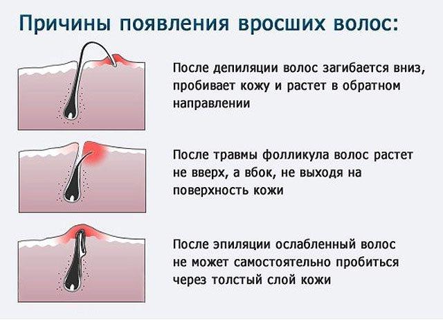 Как избавиться от волос на лобковой части
