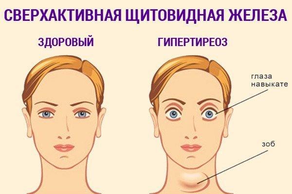 сверхактивная щитовидная железа