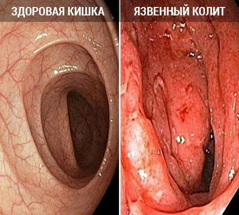 Санатории чехии лечение астмы