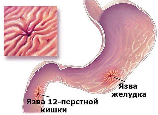 Обострение язвенной болезни желудка Методы лечения