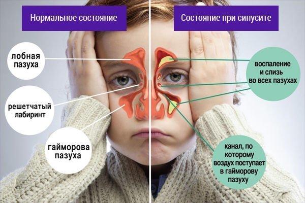 состояние пазух при синусите