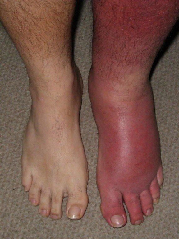 Рожистые воспаления на ногах чем лечить в домашних условиях