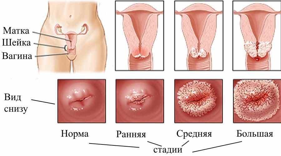 Основы Сексологии. Анатомия половой системы