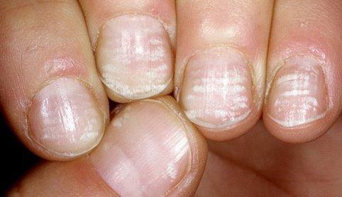 Белые пятна на ногтях пальцев ног причина у женщин