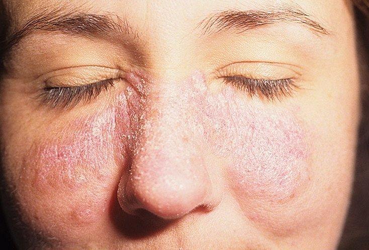 аллергия шершавые пятна