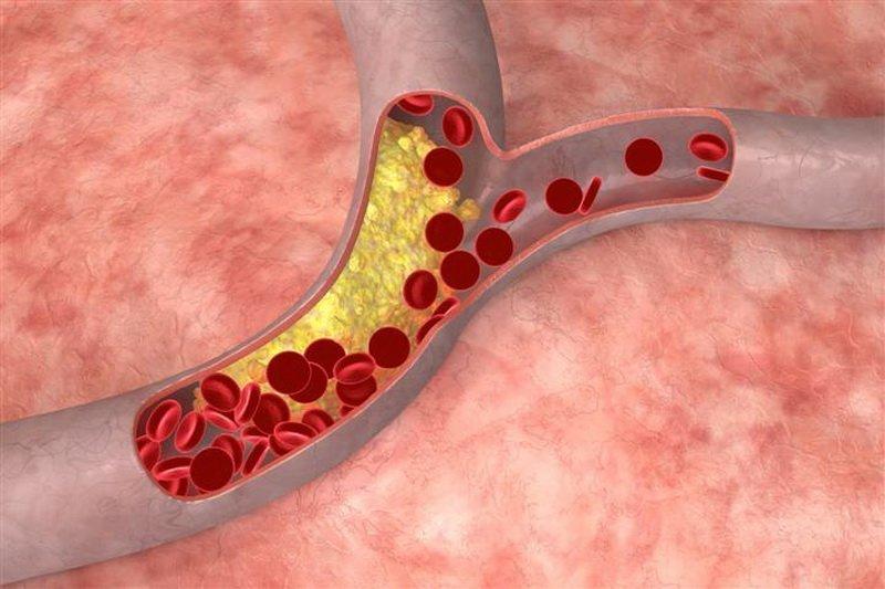 Измеритель холестерина и сахара в крови интернет магазин
