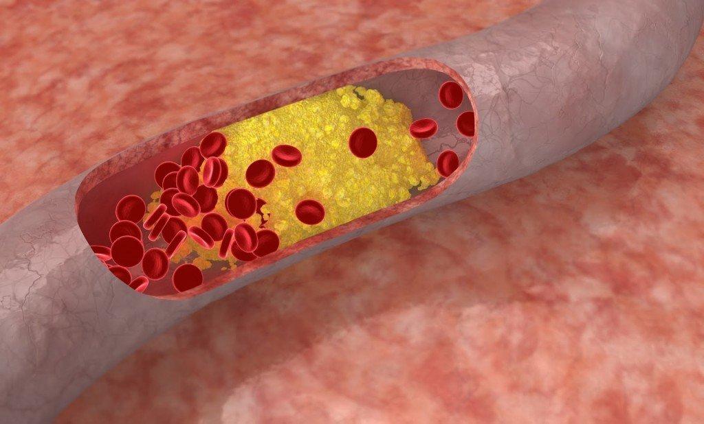 повышенный холестерин 30 лет