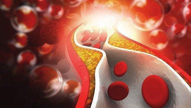 повышенный холестерин у женщин причины и последствия