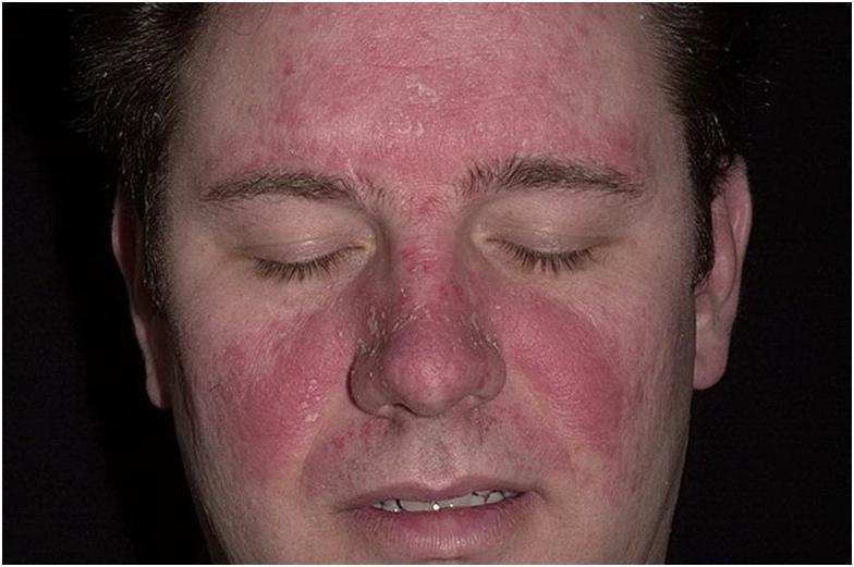 псориаз на голове лечение шампуни
