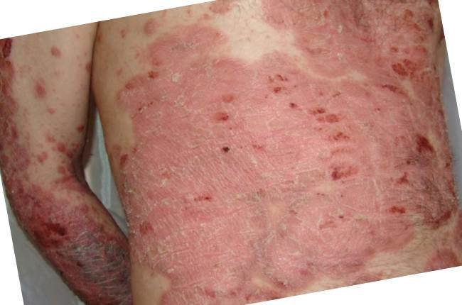 эффективное лечение паразитов в организме человека