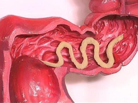 сколько паразитов в организме человека