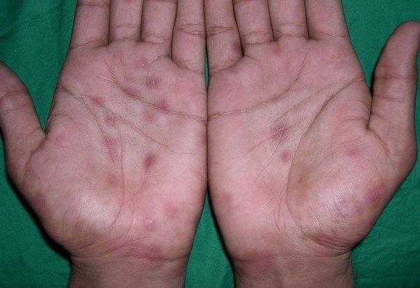 Красные пятна на руке чешутся лечение