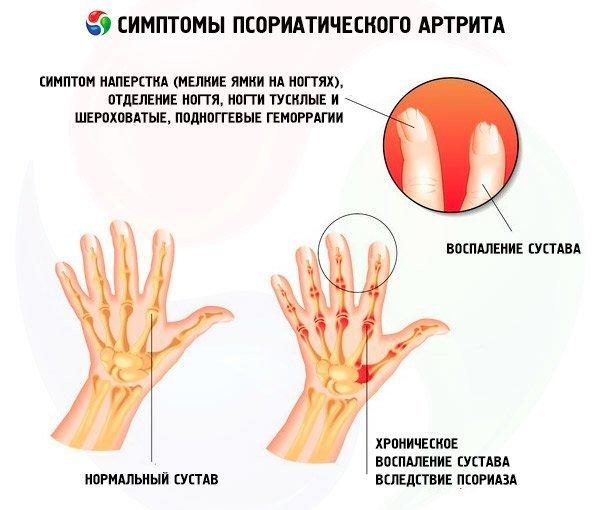 Псориатический артрит лечение и симптомы - лечение народными средствами