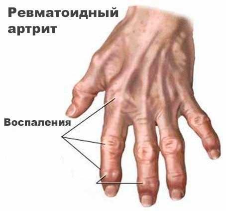 лечение ревматоидного артрита суставов народными средствами